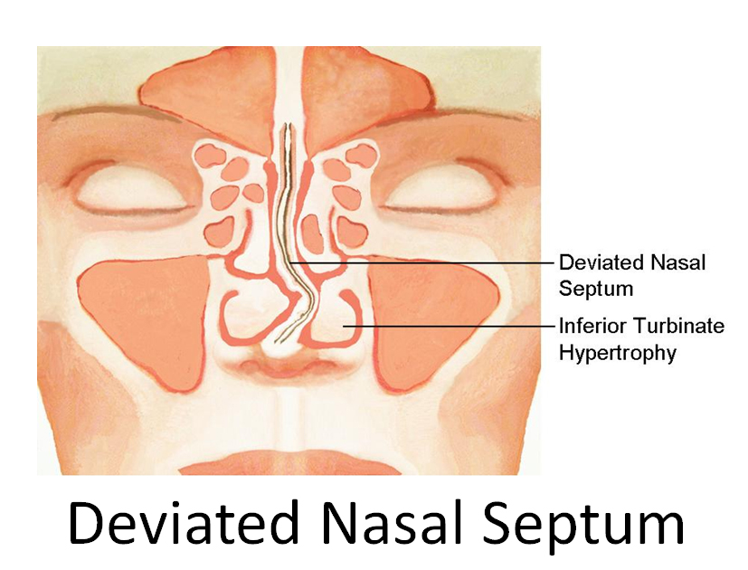 Source: www.nycfacemd.com