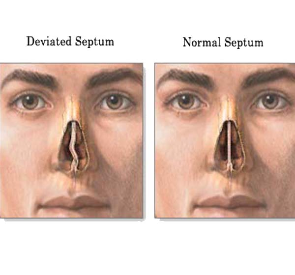 Do I Have A Deviated Septum
