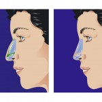 What Is Rhinoplasty?