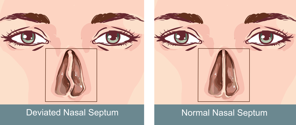 Deviated Septum Treatment